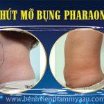 Hút mỡ toàn thân, giảm từ 10 – 20cm bằng Pharaon Lipo