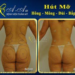hut-mo-hong-mong-dui-bap-tay
