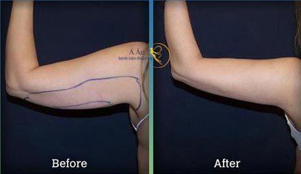 hình ảnh trước sau của việc hút mỡ cánh tay