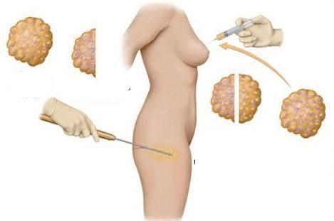 nâng ngực không phẫu thuật bằng mỡ tự thân