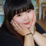 Hút mỡ má ở đâu tốt, an toàn và uy tín nhất tại Hà Nội