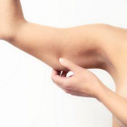 mỡ cánh tay