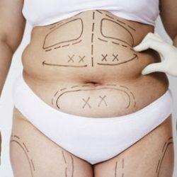 Đo lượng mỡ thừa cơ thể để hút mỡ