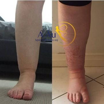 Hút mỡ bắp chân trước và sau