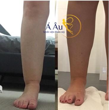 Kết quả trước và sau khi hút mỡ bắp chân tại bệnh viện thẩm mỹ á âu